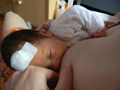 Anyatejes táplálás - koraszülött ellátás